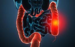 80% người phát hiện mắc ung thư đại tràng ở giai đoạn cuối chỉ vì không làm việc này sớm