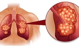 5 loại ung thư khó phát hiện sớm nhất hiện nay: Cẩn trọng không bao giờ thừa!