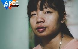 Khát vọng APEC về tăng trưởng bao trùm nhìn từ cô gái chạy thận người Việt Nam
