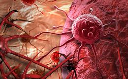 Ai cũng có tế bào ung thư trong cơ thể: 3 nguyên tắc vàng chặn đứng sự hình thành khối u