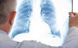 """""""Chụp X-quang nhiều mai mốt ung thư chết luôn"""": Đâu là sự thật?"""
