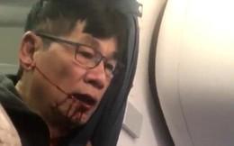 Lao đao vì bê bối đánh khách hàng, hãng hàng không này vẫn hồi phục khó tin