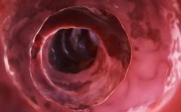 """5 dấu hiệu điển hình cảnh báo khối u ung thư đại trực tràng đang phát triển """"thần tốc"""""""
