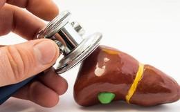 """Những người dễ bị mệt mỏi là do gan không khỏe: Đây là những điều bạn nên làm để """"cứu"""" gan"""