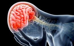8 cách hữu hiệu để ngăn ngừa căn bệnh nguy hiểm có thể gây tử vong gần như ngay lập tức
