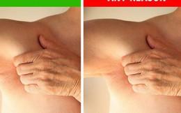 6 dấu hiệu ở nách cảnh báo sức khỏe có vấn đề: Hãy xem để biết gan bị nhiễm độc