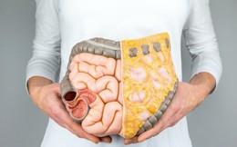 """Đây mới là loại chất béo trong cơ thể cần loại bỏ đầu tiên vì nó vừa """"cứng đầu"""" vừa khiến đe dọa sức khỏe của bạn"""