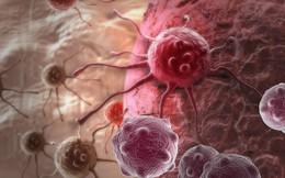 """Dù số người tử vong do ung thư tuyến tụy đứng thứ 3 ở Mỹ và đứng thứ 5 ở Anh nhưng """"sát nhân thầm lặng"""" này sẽ không có cơ hội nếu được phát hiện sớm"""
