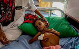 Cô bé Yemen khiến cả thế giới thức tỉnh đã qua đời