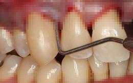 90% người Việt sâu răng, viêm lợi, mất răng... do thói quen sai lầm này: Bạn có mắc phải?