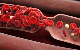 6 dấu hiệu cảnh báo cục máu đông: Nhiều người nhầm lẫn nên gặp nguy hiểm, thậm chí tử vong