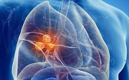 Ung thư phổi đang đứng đầu về tỉ lệ tử vong: Đây là nguyên nhân, dấu hiệu đừng nên bỏ qua