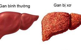 Xơ gan có thể dẫn đến ung thư gan: Đây là 4 nguyên tắc quan trọng giúp phòng ngừa hiệu quả