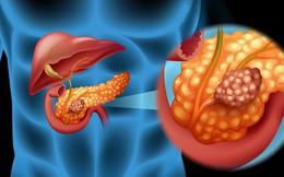Bệnh ung thư khó phát hiện dễ nhầm lẫn nhất: Nếu có 2 dấu hiệu này phải đi khám ngay