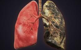 6 nhóm người có nguy cơ cao mắc ung thư phổi: 5 giải pháp phòng ngừa sớm giúp giảm tử vong