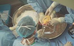 50% bệnh nhân mắc căn bệnh này chỉ sống được 5 năm, Việt Nam có rất nhiều người mang bệnh