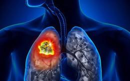Ung thư phổi: Căn bệnh có thể mắc phải bất cứ lúc nào và nguyên nhân lại đến từ những thứ thân thuộc xung quanh bạn