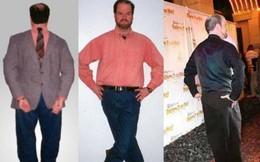 Góc siêu năng lực: Người đàn ông duy nhất trên thế giới có thể bẻ ngược bàn chân 180 độ rồi đi lại như bình thường