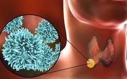 """Thấy 5 dấu hiệu này, bạn nên đi khám vì ung thư tuyến giáp đang """"lớn dần"""" trong cơ thể"""