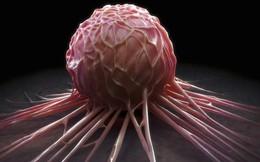 """15 dấu hiệu báo ung thư đang """"rình rập"""" nam giới: Nhớ để còn giúp người khác phát hiện sớm"""
