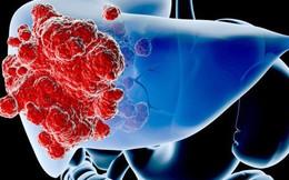 """5 """"ngộ nhận"""" về bệnh ung thư: Nhiều người hiểu sai nên việc phòng chữa bệnh không hiệu quả"""