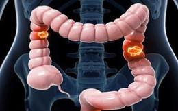 Ung thư đại trực tràng - bệnh ung thư phổ biến ở VN: Chuyên gia BV K chỉ cách phòng tránh