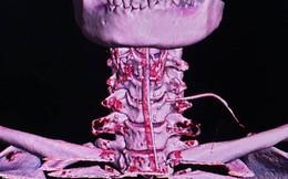 Hàng loạt ca hóc dị vật nhập viện: Bác sĩ cảnh báo thói quen ăn nhanh, nói chuyện khi ăn