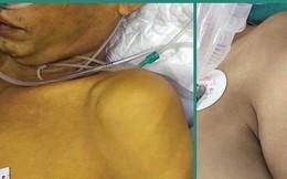 BS Bệnh viện Việt Đức cảnh báo: Đang uống thuốc Tây, bạn uống thêm thứ này thành... tự sát