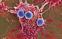 PGĐ Trung tâm Y học hạt nhân và ung bướu: Liệu pháp chữa ung thư 1 lần duy nhất tỷ lệ khỏi rất cao