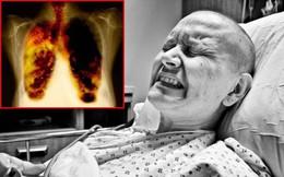 Cả đời chẳng dám sờ vào điếu thuốc nào nhưng vẫn đau đớn mắc ung thư phổi, hóa ra tôi đã phạm phải thói quen tai hại này