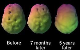 Một nhà thần kinh học đã có cách làm trẻ hóa não bộ của mình và đây chính xác là những gì ông muốn mọi người làm theo