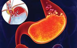 Lo lắng thường xuyên khiến bạn có nguy cơ mắc bệnh dạ dày cao gấp đôi người bình thường