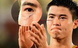 Những khoảnh khắc cầu thủ Việt Nam đổ máu trong trận thua Iraq