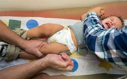 """Cha mẹ """"anti vaccine"""" từ chối tiêm chủng cho con khiến dịch sởi bùng phát và lây lan nhanh trên toàn cầu, tại Philippines hàng chục trẻ em đã thiệt mạng"""