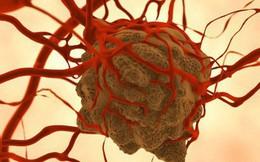 Liệu pháp trao đổi chất: Chúng ta có thể ăn kiêng để bỏ đói tế bào ung thư được hay không?