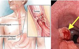 Bị ung thư lại tưởng viêm họng: 3 dấu hiệu điển hình cần nhớ, ai có cần đi khám sớm