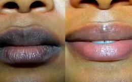Màu môi thay đổi là dấu hiệu cảnh báo bệnh phổi nguy hiểm: Tấn công cả người trẻ tuổi