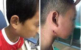 """Một bệnh viện ở Nghệ An công bố 3 trẻ nhiễm bệnh Whitmore """"ăn thịt người"""": Cảnh báo dấu hiệu dễ nhầm lẫn với bệnh quai bị"""