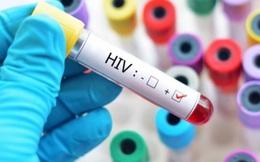 Chủng virus HIV mới phát hiện sau 20 năm có đáng sợ hay không?