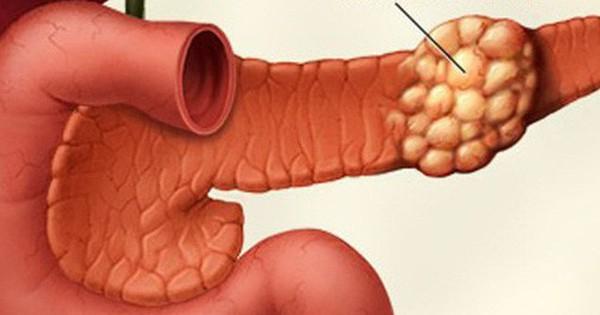 Сахарный диабет от опухоли поджелудочной
