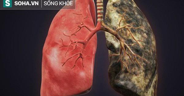 Bệnh về phổi ngày càng phổ biến: Hãy ăn những thực phẩm này để ngăn ngừa bệnh ''tấn công''