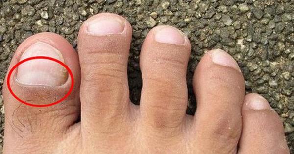 Thận đang dần suy yếu nếu chân của bạn gặp phải những vấn đề sau