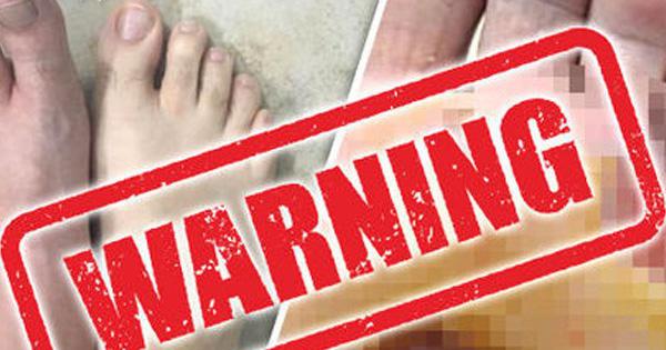 Vì thói quen đi chân trần trong phòng tắm mà người đàn ông này bị ''vi khuẩn ăn thịt người'' tấn công