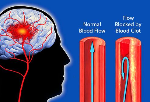9 bộ phận cơ thể bị hủy hoại bởi thuốc lá - Ảnh 6.