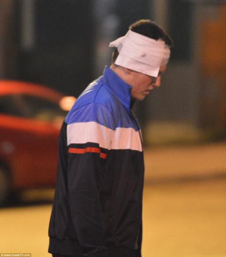 Một nam giới phải băng đầu rời khỏi khu vực đấu trường ở thành phố Manchester. Ảnh: iCelebTV.