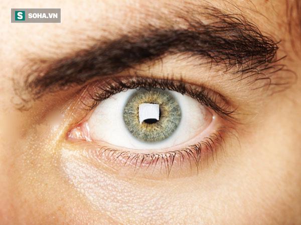 Sự xuất hiện của những đốm mù có thể là dấu hiệu của chứng đau nửa đầu.