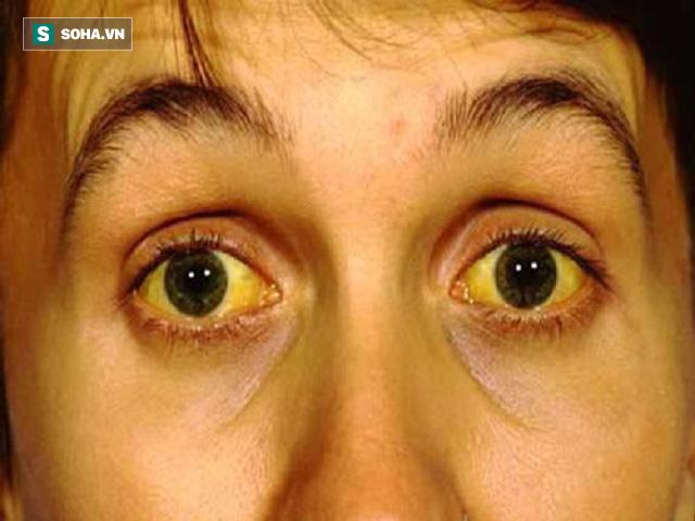 Chức năng gan có vấn đề cũng gây ra triệu chứng vàng da, vàng mắt.