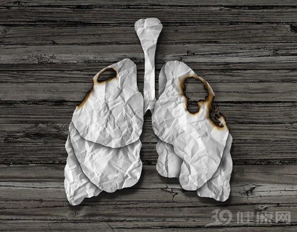 Ung thư phổi tiên lượng xấu nếu phát hiện muộn: Chỉ cần có dấu hiệu này là phải khám ngay! - Ảnh 3.
