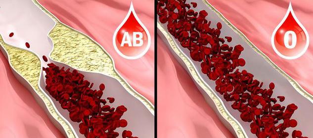 Nếu mang nhóm máu O, đây là 7 điều giá trị bạn cần biết về thứ dung dịch quý giá nhất với sự sống này để tự bảo vệ sức khỏe - Ảnh 4.