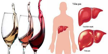 Lỡ uống nhiều rượu gây tổn thương gan, đây là cách giúp gan hồi phục hiệu quả - Ảnh 1.